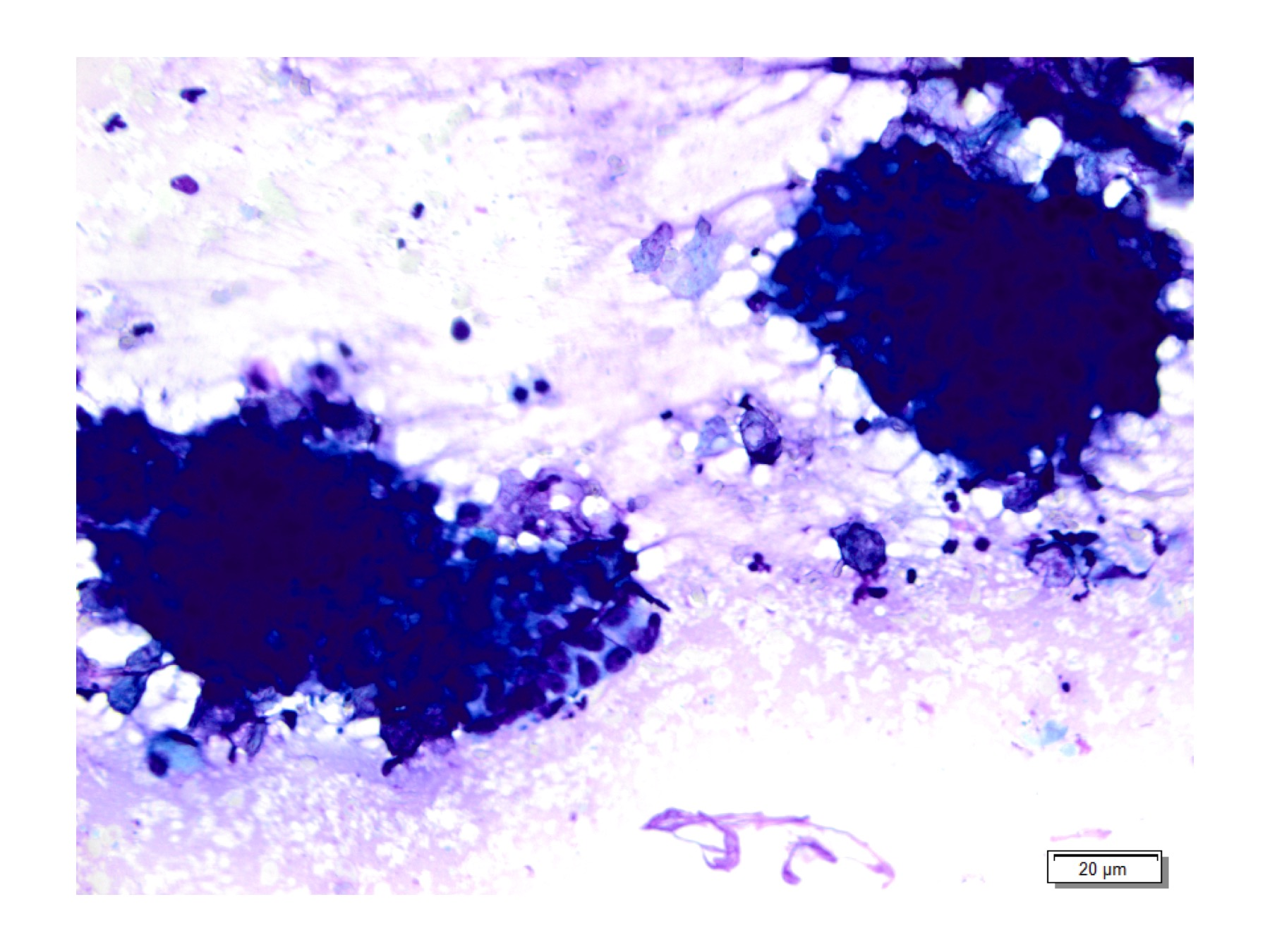Figure 3: Clusters of basaloid cells, Diff Quik at 40x