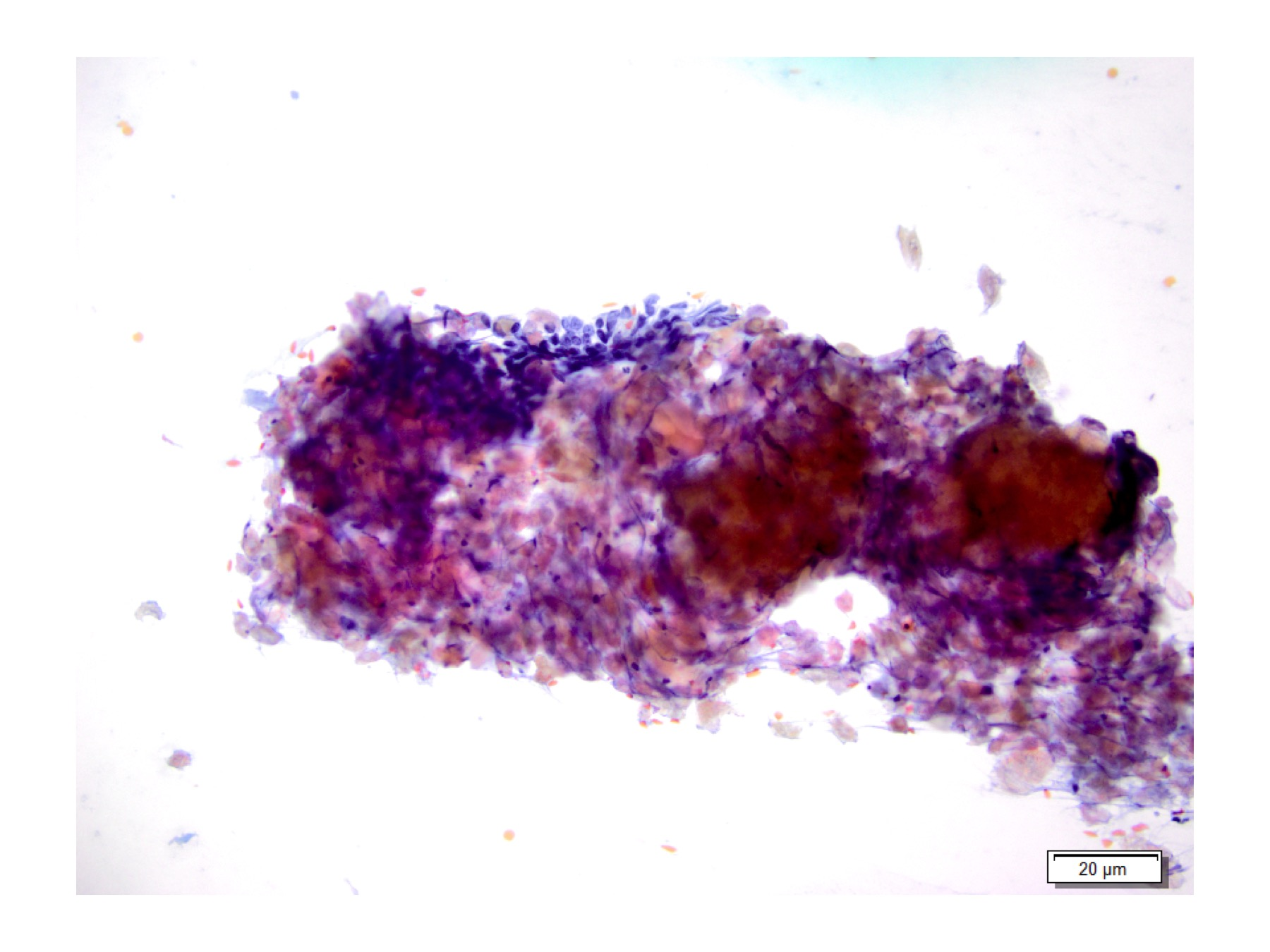 Figure 4:  Anucleated squames, keratin debris, clusters of basaloid cells, Pap stain at 20x