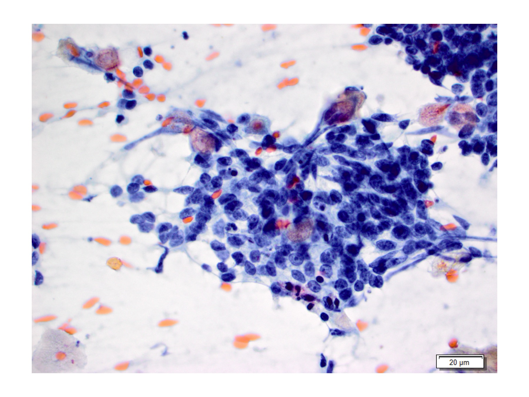 Figure 5:  High power vie of basaloid cells, Pap stain at 60x